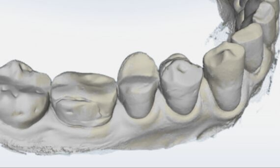 Gingival Recession Measurement, before, OraCheck 5
