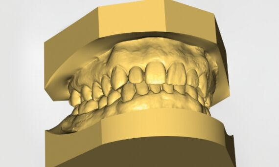 CEREC Ortho digital model