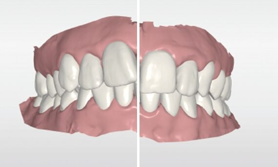 Before and after comparison with CEREC Ortho