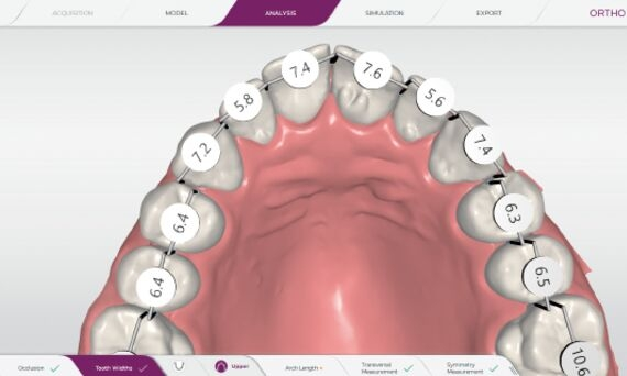 Measurement of tooth sizes