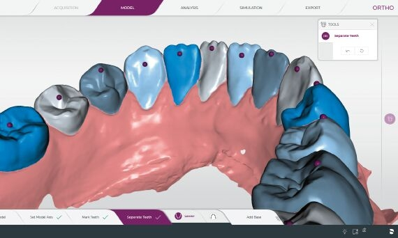 CEREC Ortho Model segmentation